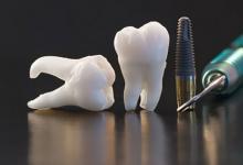 3D-печать позволит полностью восстанавливать зубы за счет регенерации сосудов