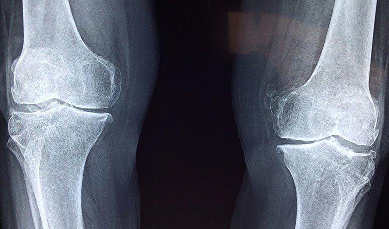 На 3D-принтере напечатали искусственные хрящи для коленного сустава